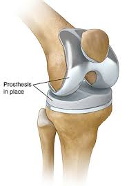 Протезирование коленного сустава в Финляндии