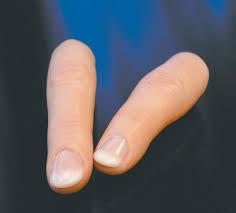Суставный протез пальцев остеоартрит суставов