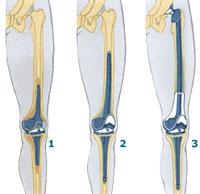 замена эндопротеза коленного сустава