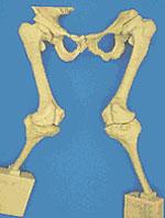 Трехмерная модель протеза
